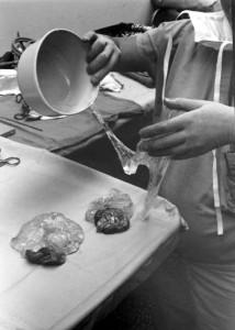 Breast-Implant-gel